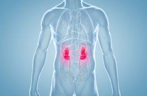 🔒 Update Nierenzellkarzinom: Relevantes aus den Leitlinien