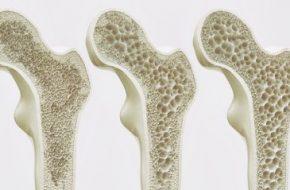 🔒 Testosteronsubstitution: Testosteronmangel und Osteoporose