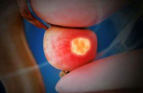 🔒 Andrologie: Testosteronsubstitution bei PCa-Patienten