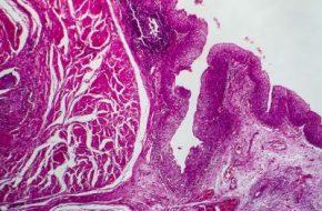 🔒 Uroonkologie: Organerhalt bei Tumoren des oberen Harntrakts