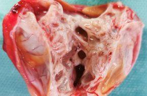 🔒 Fallbeispiele von seltenen Harnröhren- und Hodentumoren