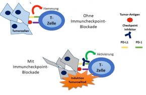 🔒 Immunonkologische Therapie beim fortgeschrittenen Urothelkarzinom